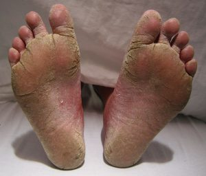 https://commons.wikimedia.org/wiki/File:FeetFungal.JPG#/media/File:FeetFungal.JPG by James Heilman, MD is licensed under CC BY-SA 3.0